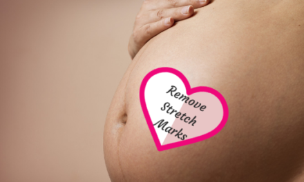 Top 5 Stretch Marks Removal Oil, Cream and Lotion